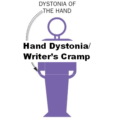 focal hand dystonia