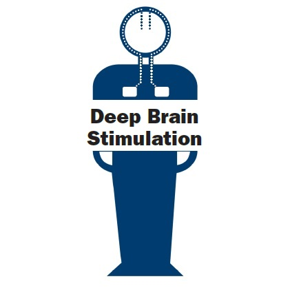 Deep brain stimulation for dystonia